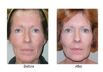 Get Rid Of Wrinkles and Blemishes Instantly With Chemical Peeling