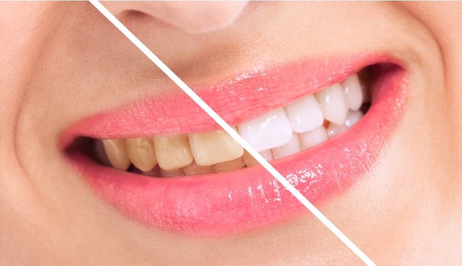 Breaching teatment, woman perfect whiten teeth close up