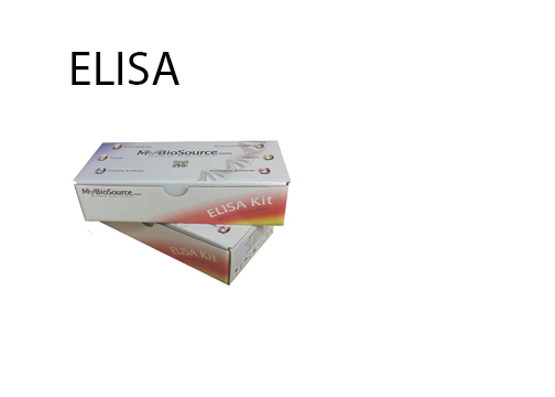 Here Is Why You Need To Trust Elisa Test