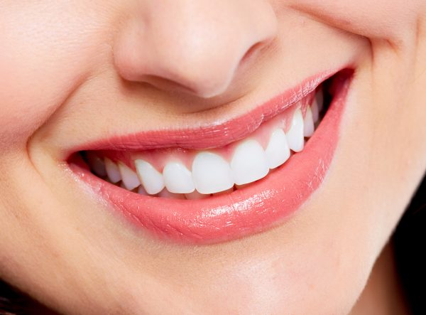 Perfecting Your Smile With Porcelain Veneers