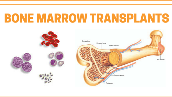 Benefits Of A Bone Marrow Transplant In India