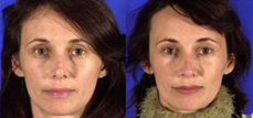 Rhinoplasty- The Best Cure For Nasal Deformity and Breathing Problems