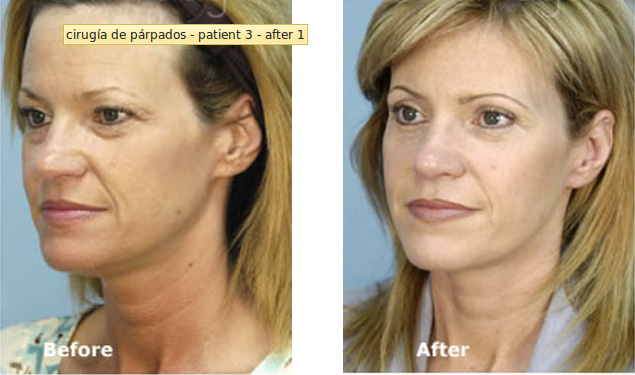 3 Cosmetic Surgeries To Make Your Look The Best