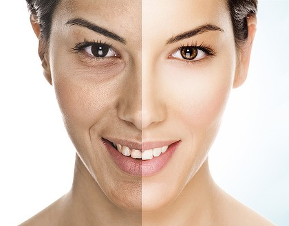 cosmetic sugery