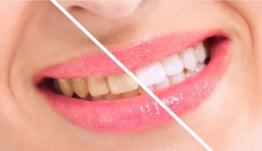 Breaching teatment, woman perfect whiten teeth close up